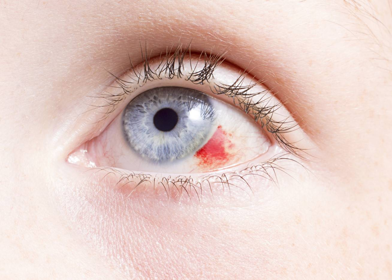 cukorbeteg szem