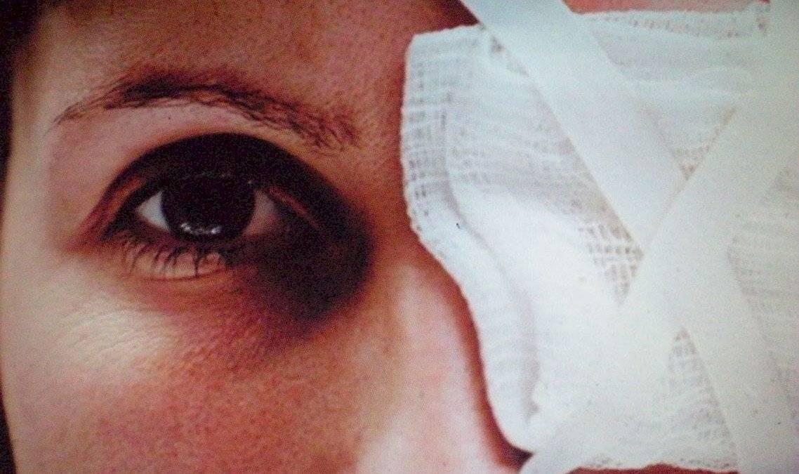 szem sérülése